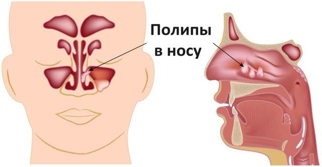 Полипы носа: хоанальный, антрохоанальный, а также код по МКБ 10