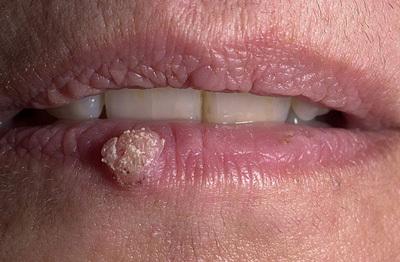 Папиллома на губе: диагностика и методы удаления