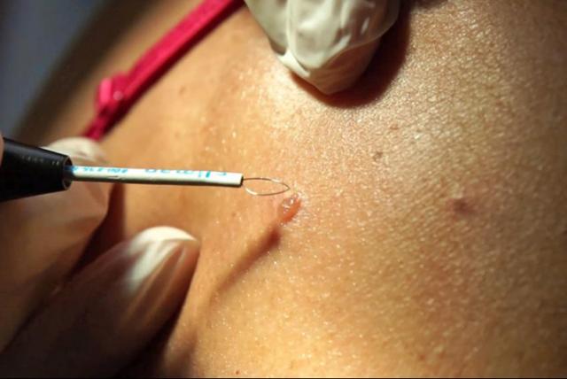 Папилломы на члене: лечение и удаление папиллом на головке