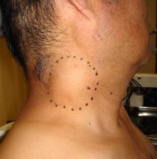 Жировик на шее: причины, как выглядит, как удалить