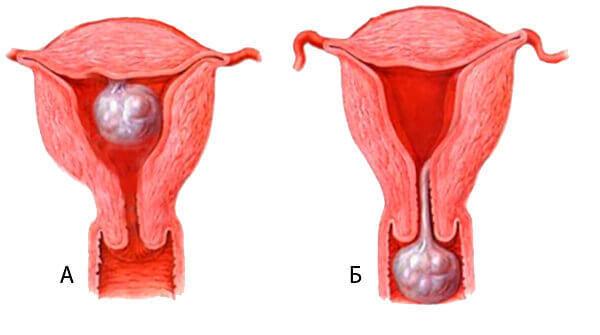 Миомы и полипы матки: признаки, диагностика и методы лечения