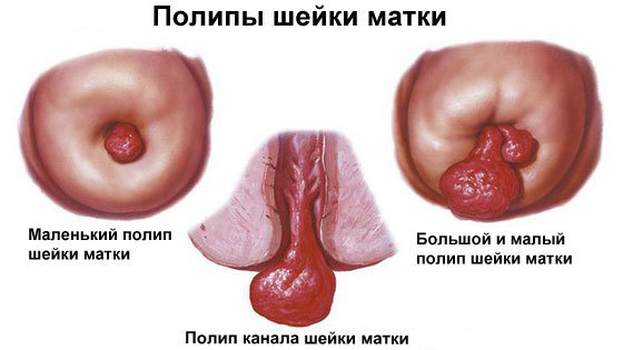 Биопсия полипа желудка и кишечника, матки и шейки матки