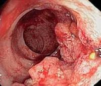 Колоректальный рак: диета во время и после лечения, профилактика