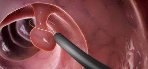 Полипы в желчном пузыре: лечение Урсосаном, Аллохолом