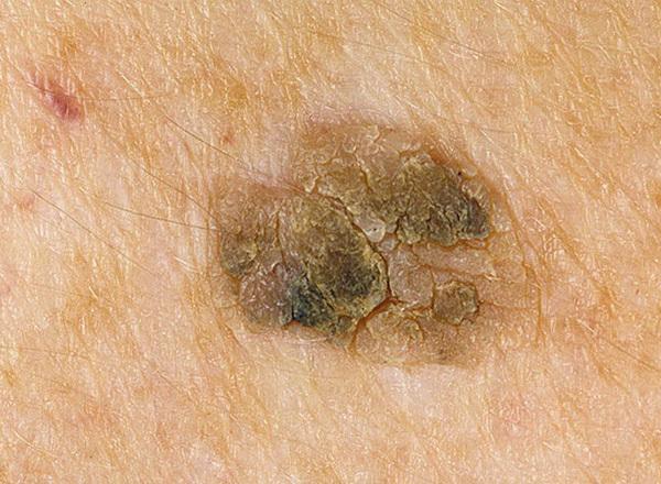 От чего появляются папилломы на теле, о чём говорит их появление