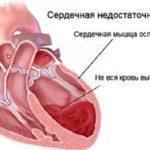 Колоноскопия прямой кишки: при геморрое, при трещине прямой кишки
