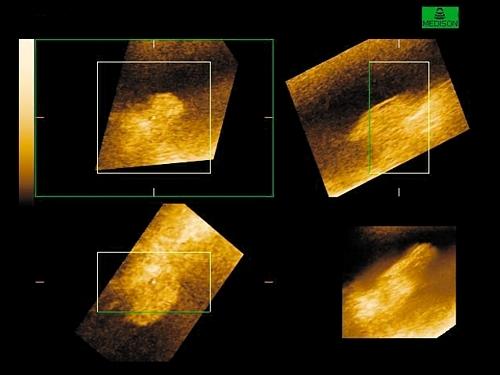 УЗИ признаки полипа мочевого пузыря и протокол диагностики