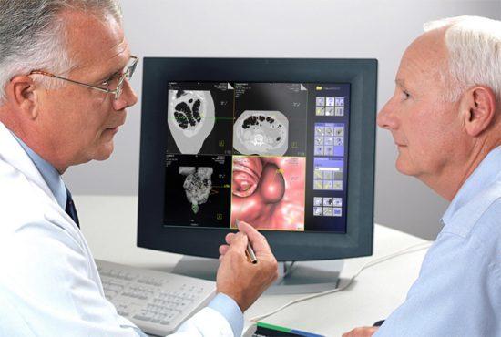 Что лучше: КТ или колоноскопия кишечника, как проводится КТ