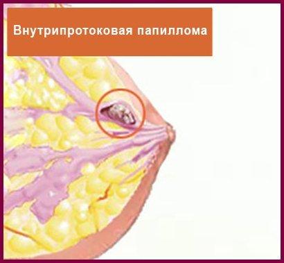 Плоские папилломы: диагностика, консерватиное лечение и удаление