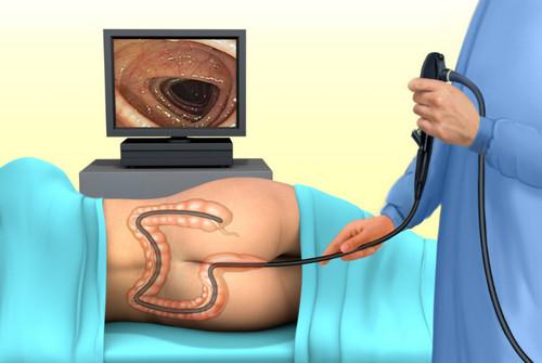 Восстановление кишечника после колоноскопии: нормализация стула