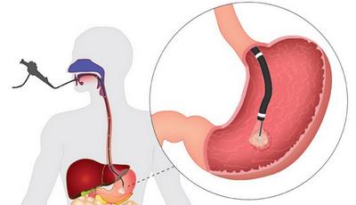 Гиперплазиогенный полип желудка - что это такое, тактика лечения