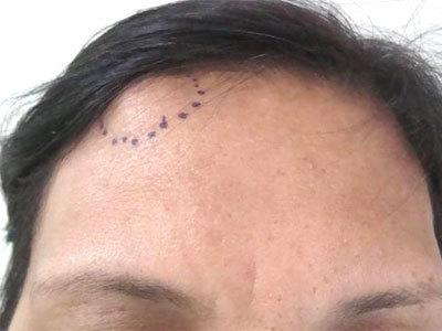 Остеома стопы: методы лечения и можно ли лечить остеому дома