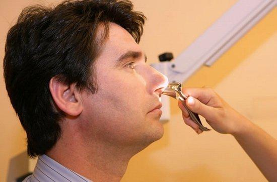 Как определить полипы в носу: МРТ, УЗИ, КТ, а также видно ли полипы на рентгене