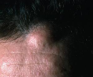 Жировики на голове: причины возникновения и методы лечения