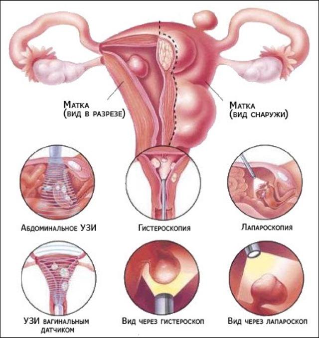 Полип в матке в менопаузе: симптомы, лечение и методы удаления