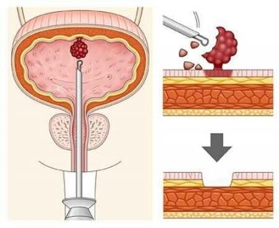 Папиллома мочевого пузыря: симптомы, диагностика и лечение