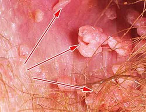 Папилломы на шее и подмышках - признак чего, что это значит