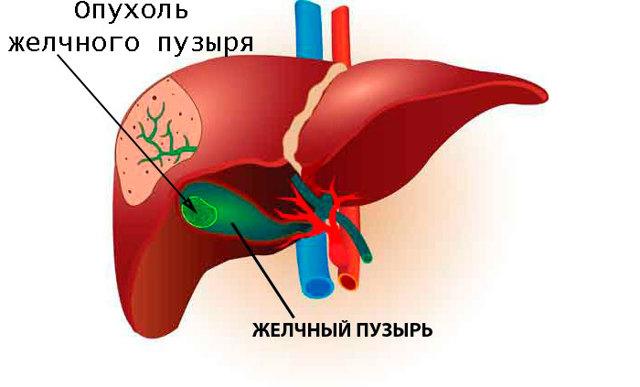 Холестериновый полип: опасно ли это, диета и методы лечения