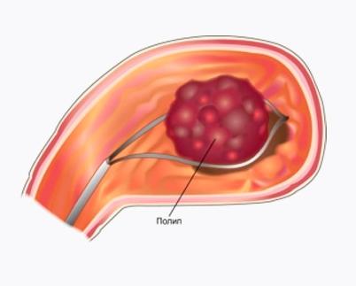 Полипы в желудке: классификация, код по МКБ 10, а также особенности развития
