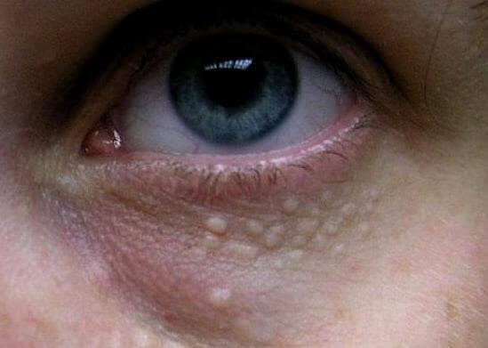 Жировик под глазом и на веках: причины появления, как избавиться