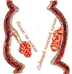 Полипы в прямой кишке - симптомы у мужчин и женщин
