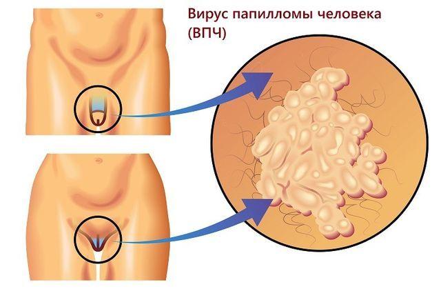 Папилломы на интимных местах у женщин: виды, симптомы и лечение