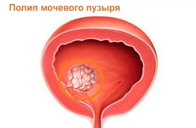 Полип мочевого пузыря - лечение без операции эффективными препаратами