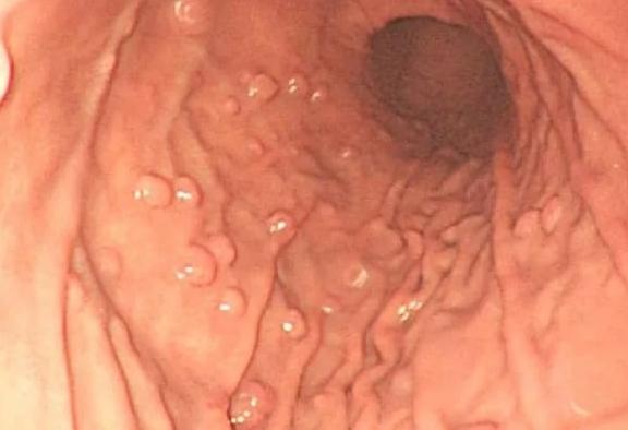 Гиперпластический полип желудка: что это такое, а также лечение и диета