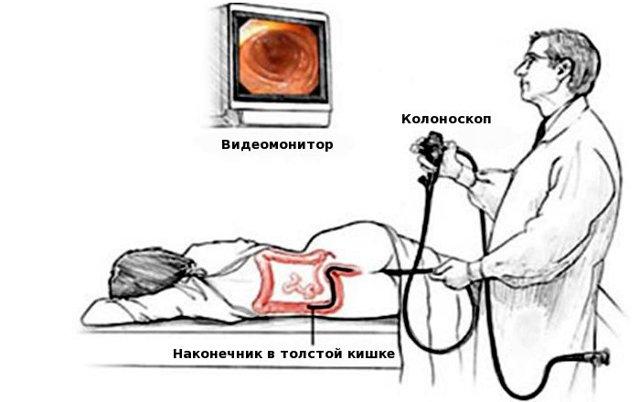 Анализы для колоноскопии и подготовка к исследованию