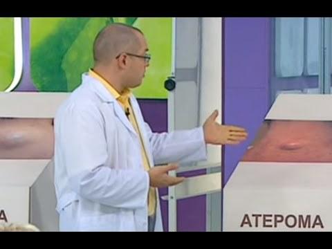 Липома молочной железы: что это такое и как лечить