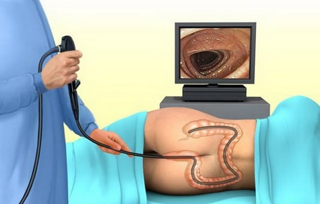 Полип сигмовидной кишки: симптомы, лечение и методы удаления