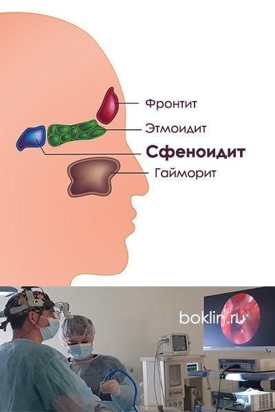 Киста клиновидной пазухи носа: особенности патологии, причины, симптомы, а также возможные осложнения
