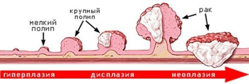 Полипы в мочевом пузыре у мужчин: симптомы, лечение и удаление