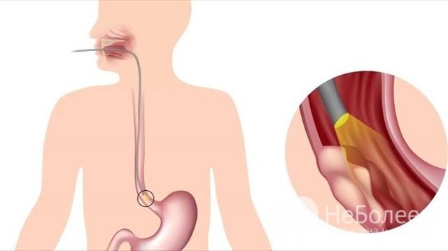 Полип пищевода: причины, симптомы и лечение, как удаляют полипы