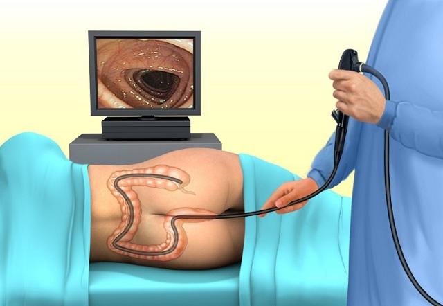Колоноскопия во сне - что это такое, плюсы и минусы седации