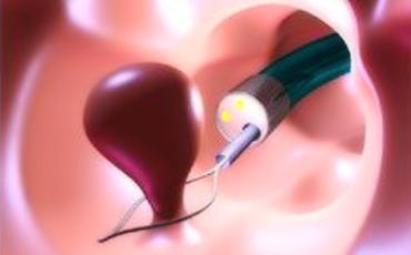 Как вылечить полипы в желудке - лечение медицинскими препаратами