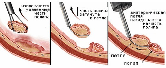 Чем опасны полипы в кишечнике на толстом основании и тонкой ножке